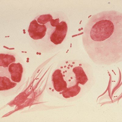 Cuatro nuevas enfermedades de transmisión sexual que preocupan a los científicos