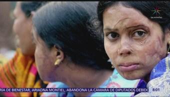 Al año, miles de mujeres son atacadas con ácido en cara y cuerpo