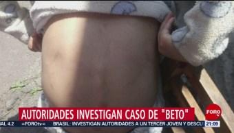 Foto: Beto Niño 6 Años Torturado Tlalpan CDMX 14 de Marzo 2019