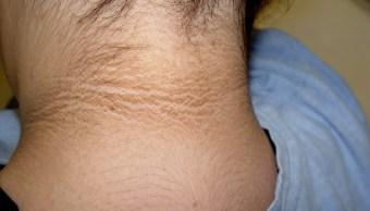 Signos De Diabetes, Prediabetes, Oscurecimiento Cuello, Cuello Negro, Diabetes, Acantosis Nigricans