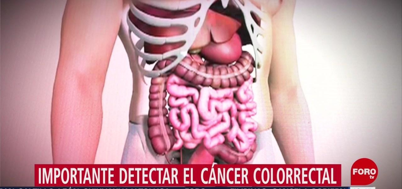 Foto: Diagnóstico de cáncer de colon puede tardar años