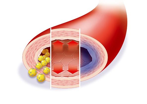 La formación de placa en las arterias a causa del colesterol alto es una de las causas de raíz de las enfermedades cardiovasculares (Getty Images)
