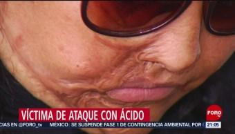 Foto: Víctima Ataque Ácido Expareja Historias Mujeres Atacadas Acido 11 de Abril 2019