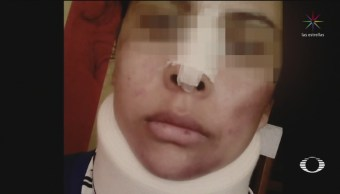 Foto: Joven denuncia violación y agresores la violan de nuevo como represalia
