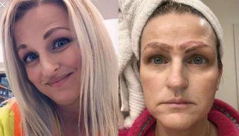 Foto Tratamiento de belleza la dejó con cuatro cejas 15 abril 2019
