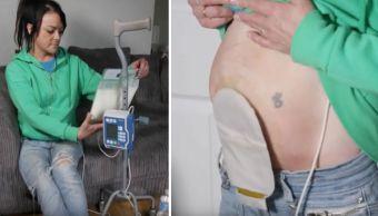 cicatriz-cesarea-enfermedad-Crohn-trasplante-organos-intestinos