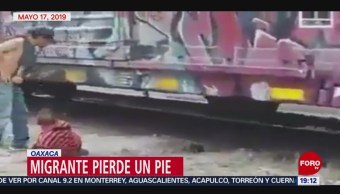 Foto: Migrante Amputación Pierde Pies Bestia Oaxaca 20 Mayo 2019