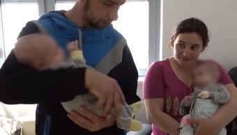 Separan con éxito a bebés siamesas unidas por el hígado y los intestinos