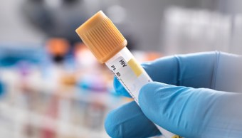 UNAM patenta fórmula que protege hígado de pacientes con VIH