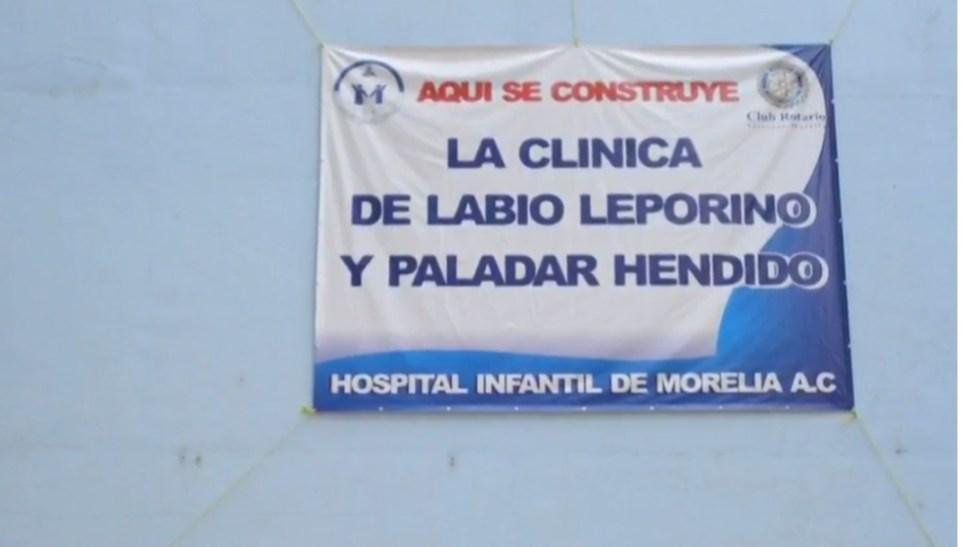 Foto: Clínica labio leporino y paladar hendido en Michoacán, junio de 2019, México