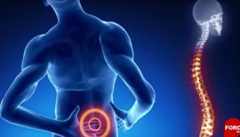 Foto ¿Cómo prevenir las hernias de disco? 26 junio 2019