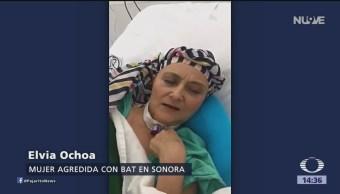 FOTO: Despierta mujer golpeada con un bat en Sonora