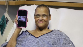 foto Mujer con obesidad mórbida logra bajar 270 kilos 28 junio 2019