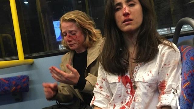 Foto Pareja de lesbianas sufre brutal ataque homófobo en Londres 7 junio 2019