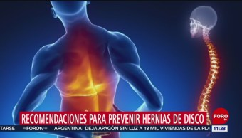 Recomendaciones para prevenir hernias de disco