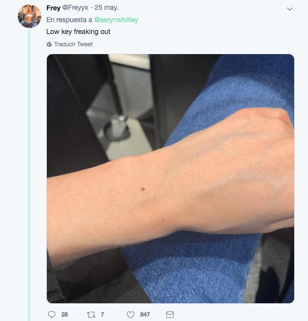 Foto Teoría del lunares en el brazo está sorprendiendo a las mujeres del mundo 5 junio 2019