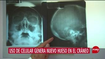 FOTO. Uso de celular genera nuevo hueso en el cráneo