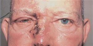 afectacion en el ojo por culebrilla