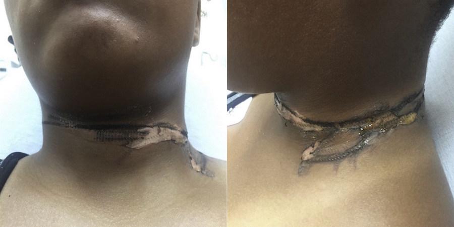 Foto Cargador de teléfono le provoca graves quemaduras en el cuello 8 agosto 2019