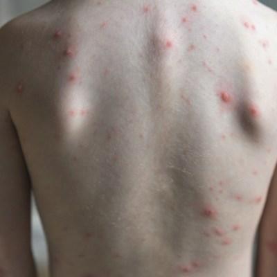 Confirma segundo caso de sarampión en Edomex