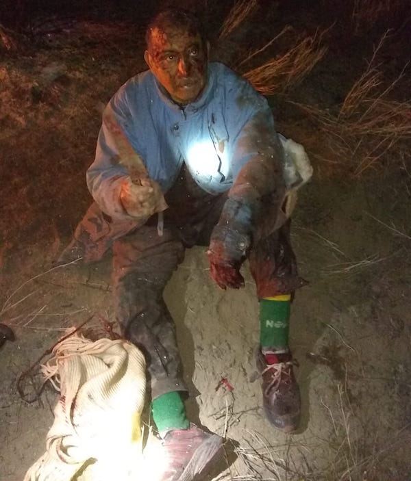 Foto Hombre luchó con un puma para defender a su perro 21 agosto 2019