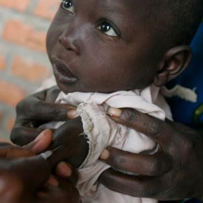 Sarampión causa más muertes que ébola en Congo