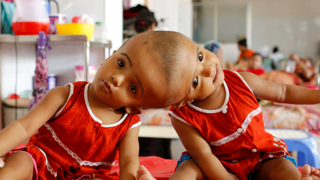 FOTO Separan con éxito a siamesas unidas por la cabeza (EFE)