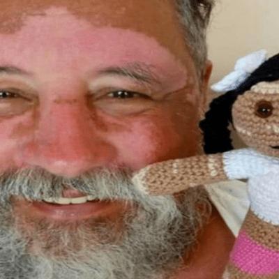 Abuelo crea muñecas con vitiligo para su nieta