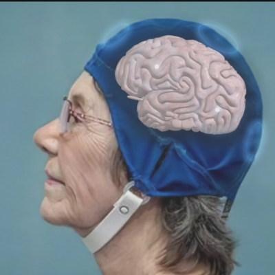Crean casco que revierte deterioro cognitivo provocado por Alzheimer