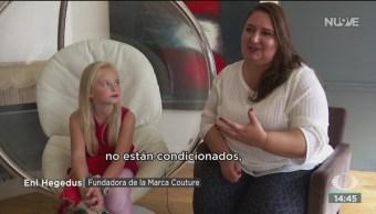FOTO: Daisy May, la historia de una niña después de una doble amputación, 27 septiembre 2019