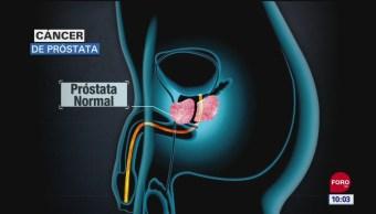 FOTO: El cáncer de próstata, 16 septiembre 2019