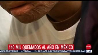 Foto: Quemaduras Pirotecnia México 12 Septiembre 2019