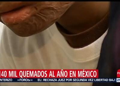Quemaduras por pirotecnia en México