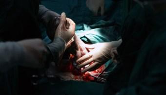 FOTO Médicos matan a niña con daño cerebral al nacer, dejan viva a gemela sana; en la imagen, una cesárea (Getty Images)