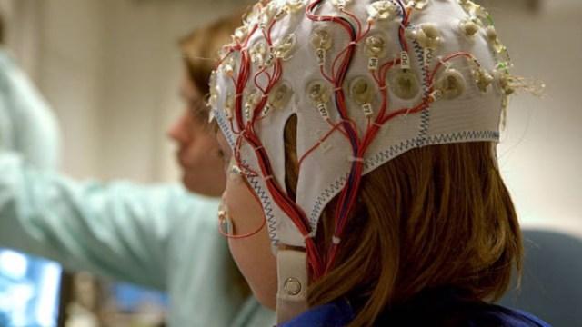 Imagen: Más de 2.5 millones de personas en México sufren epilepsia, de las cuales algunas no están diagnosticadas