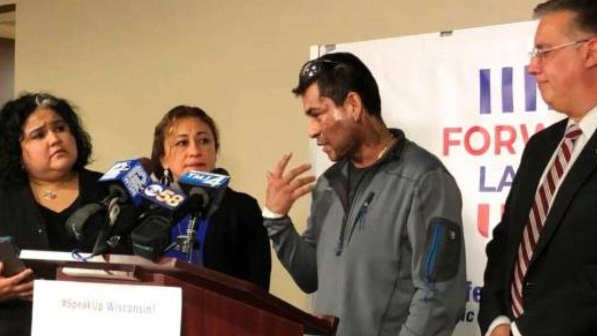 Mahud Villalaz sufrió quemaduras de segundo grado en la cara