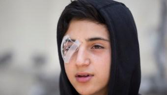 Foto: Protestas en Chile: Decenas de manifestantes han sufrido lesiones en ojos