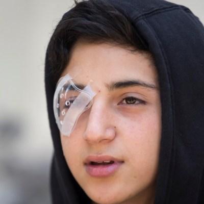 Protestas en Chile: Decenas de manifestantes lesionados en ojos por perdigones