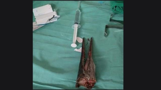 Foto: Pez espada atraviesa el cuello y cráneo de un joven en Indonesia
