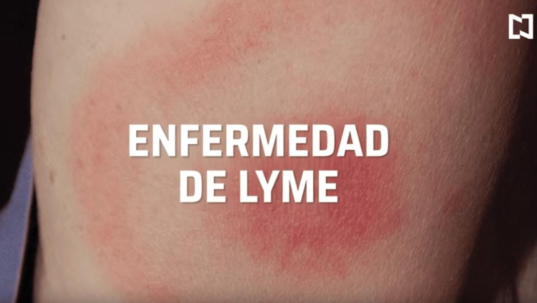 Foto Qué es y cuáles son los síntomas de la enfermedad de Lyme 16 enero 2020