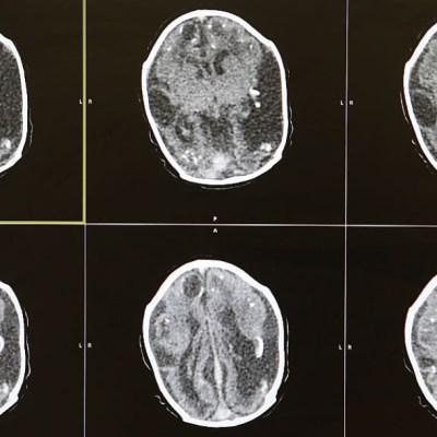 ¿Coronavirus podría causar accidentes cerebrovasculares en adultos jóvenes?