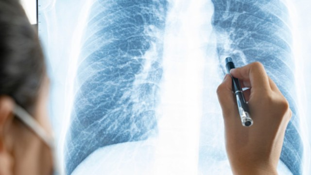 Una doctora revisa una radiografía de pulmones. Getty Images