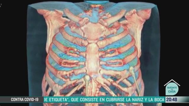 Foto: ejercicios respiratorios para prevenir coronavirus 11 Mayo 2020