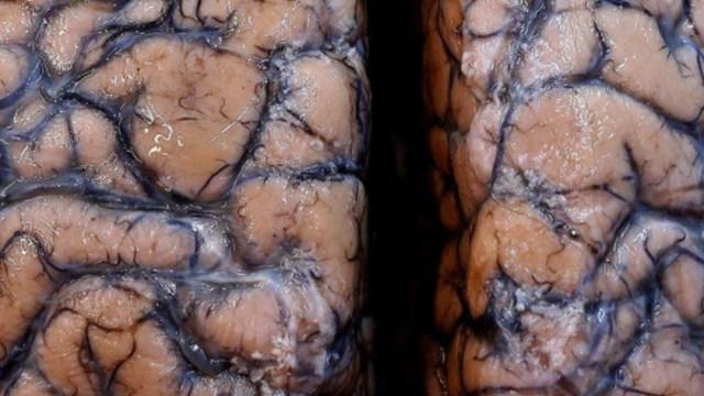 Cerebro humano, científicos advierten de lesiones cerebrales relacionadas al COVID-19