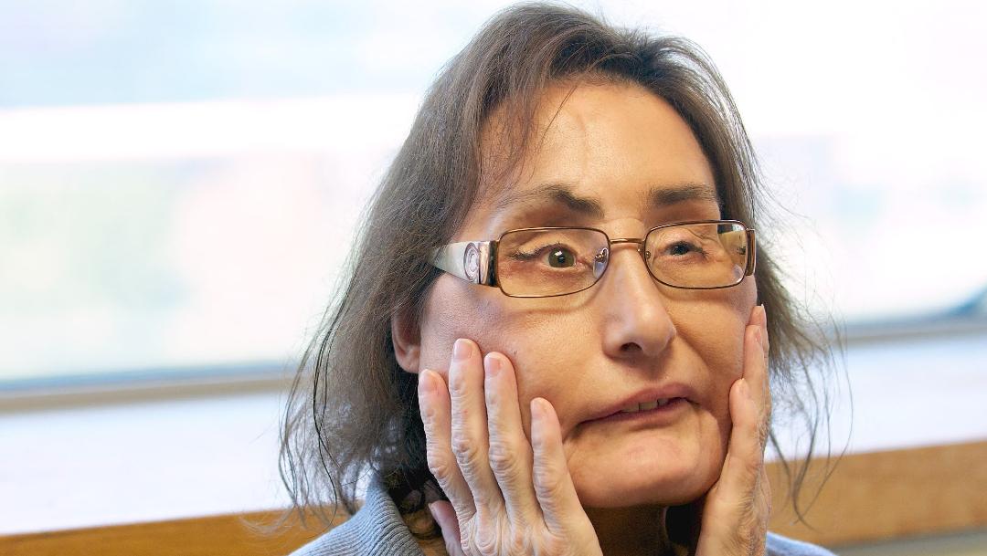 Connie Culp, la mujer que en 2008 recibió el primer trasplante facial casi completo en Estados Unidos