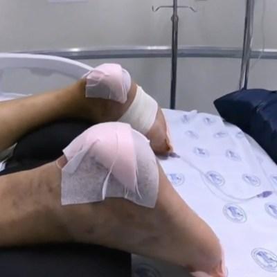 Pacientes hospitalizados por COVID-19 podrían sufrir severas lesiones en la piel
