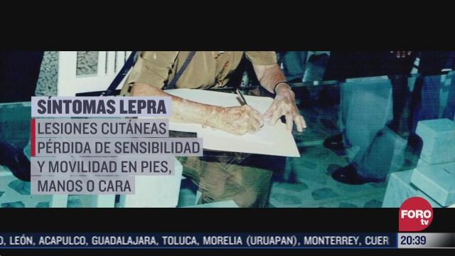 suman 90 casos de lepra en mexico