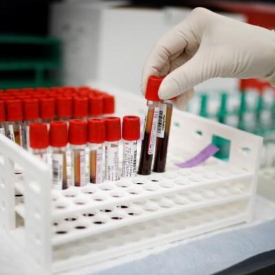 Ensayo de Moderna para vacuna COVID-19 no incluye suficientes voluntarios de minorías étnicas