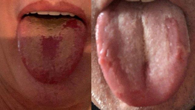 La lengua COVID es un síntoma no ha sido considerado por la OMS pero un experto británico asegura que hay relación con coronavirus