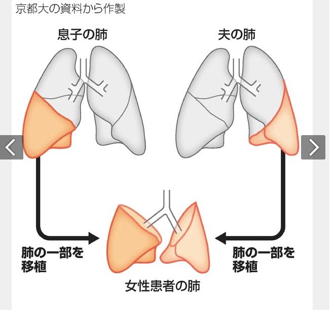 Realizan en Japón primer trasplante de pulmón de donante vivos a paciente con daños por COVID